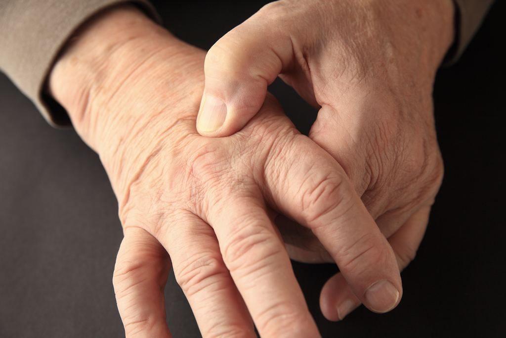 Dolor en la mano por artritis reumatoide
